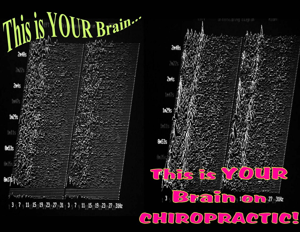Brain on Chiropractic