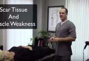 Scar Tissue Muscle Weakness